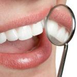 Astuces de grand-mère pour des dents blanches comme neige