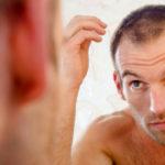 Les bonnes raisons de choisir une greffe de cheveux en Turquie